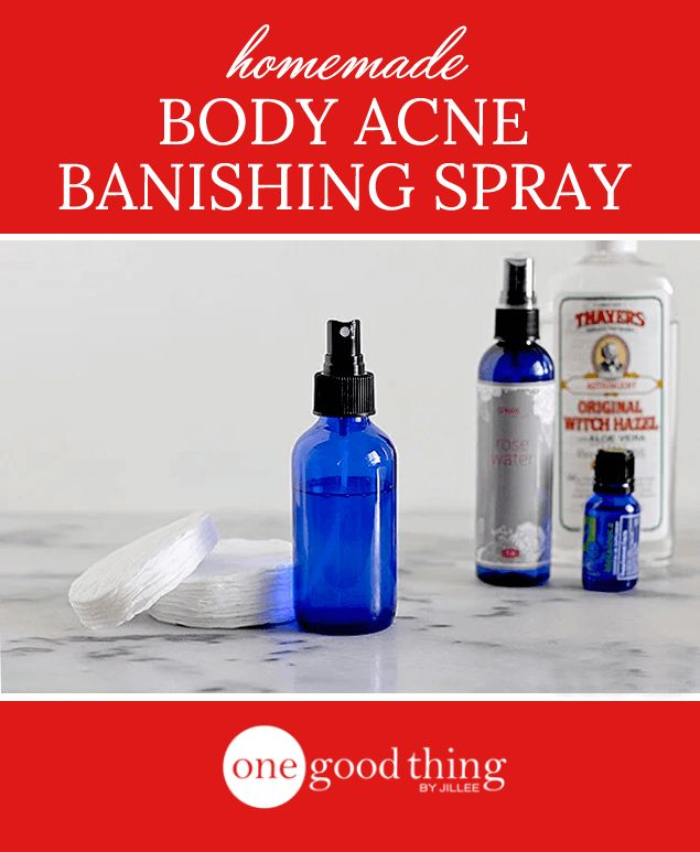 Banish back acne with this simple homemade spray one good thing by use coupon code jillee to receive 10 off any spark naturals essential oil order fandeluxe Images