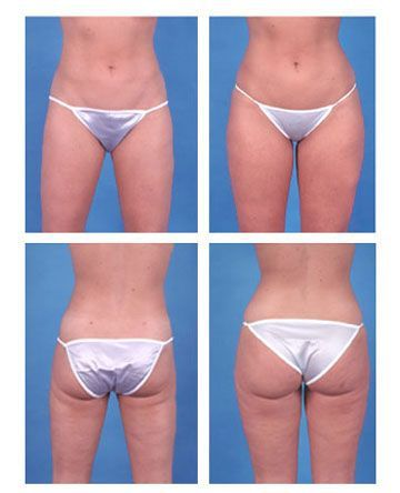 Liposuction of Thighs | Posts by Linet | Bloglovin'