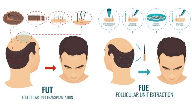 How Much Does it Cost to Get Hair Transplant in India ? | Posts by